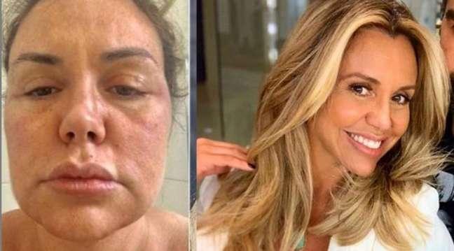 """Renata Banhara diz que tumor no cérebro aumentou: """"Impossível ser operado"""""""